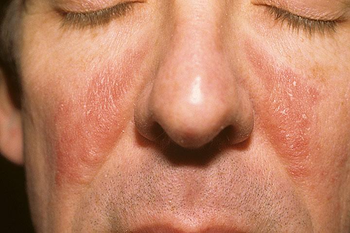 psoriasis ansikte behandling